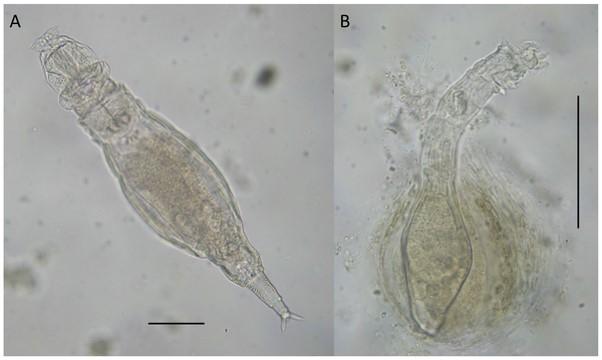 Fontaneto et al. (2011 PLoS ONE) Evidence of weak habitat specialisation in microscopic animals